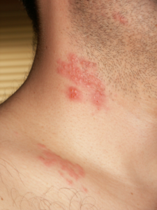 Herpes_zoster_neck